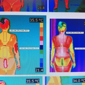 Thermography is associated with inflammation and chronic pain in patients with fibromyalgia