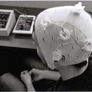 Proven transcranial therapy for fibromyalgia
